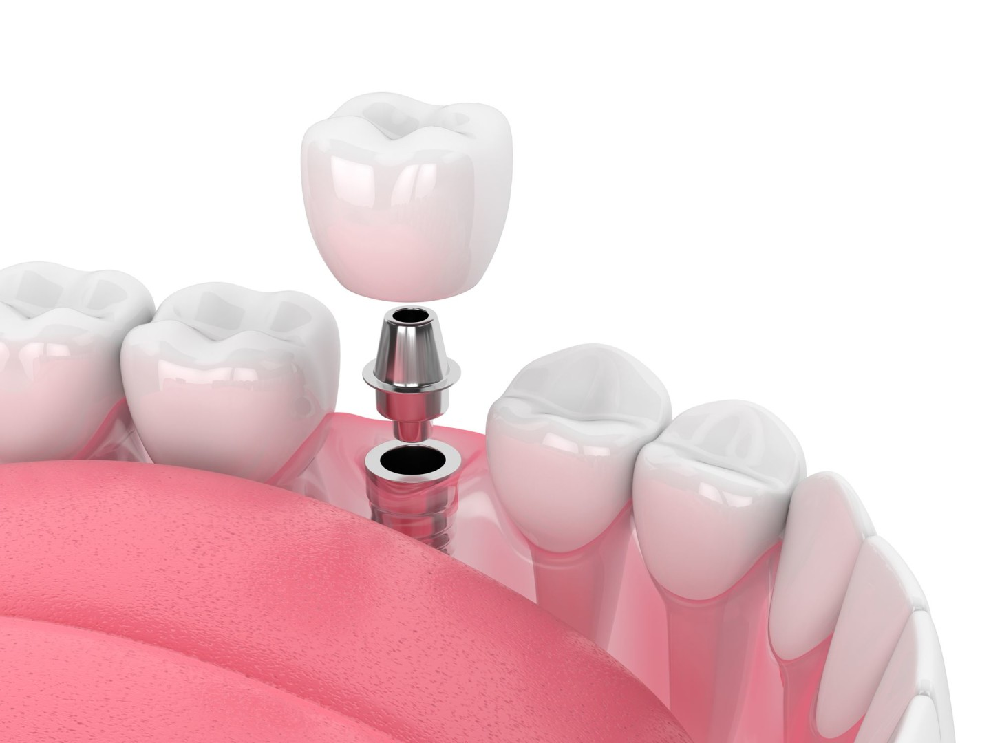 implant dentaire 3D